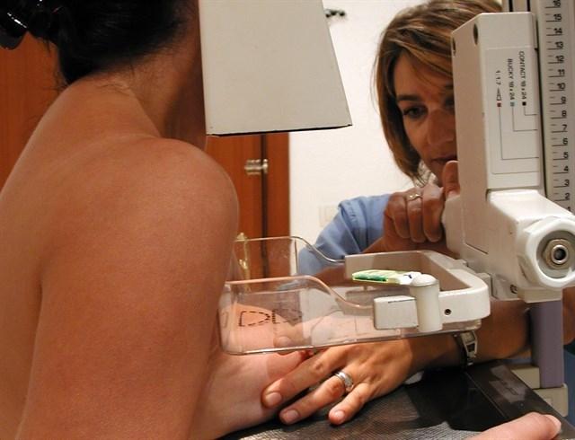 El Programa de Detección Precoz de Cáncer de Mama, llegará a 5 localidades de la Mancomunidad este mes de noviembre