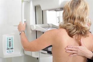 589 mujeres de Segura de León e Higuera la Real se someterán a mamografías este mes de septiembre