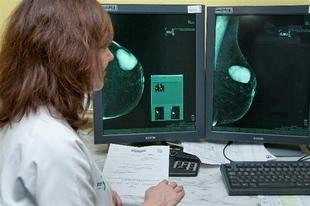 341 mujeres de Fuentes de León se someterán a mamografías a partir de mañana